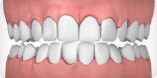 overly-crowded-teeth